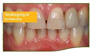 tandblegning fortand efter