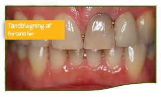 tandblegning fortand før